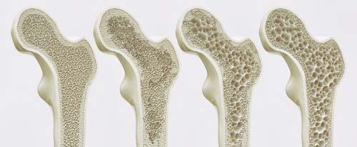 Le collagène et les os