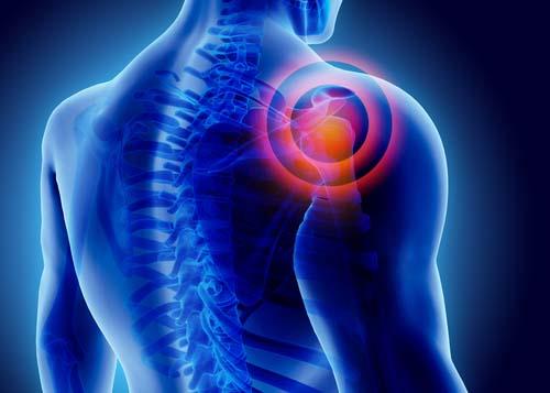 Les causes des douleurs articulaires